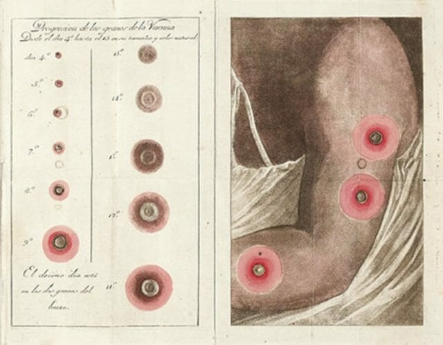 An excerpt of de Balmis's translation of an 1801 book by French physician Jacques-Louis Moreau on smallpox and use of the vaccine.